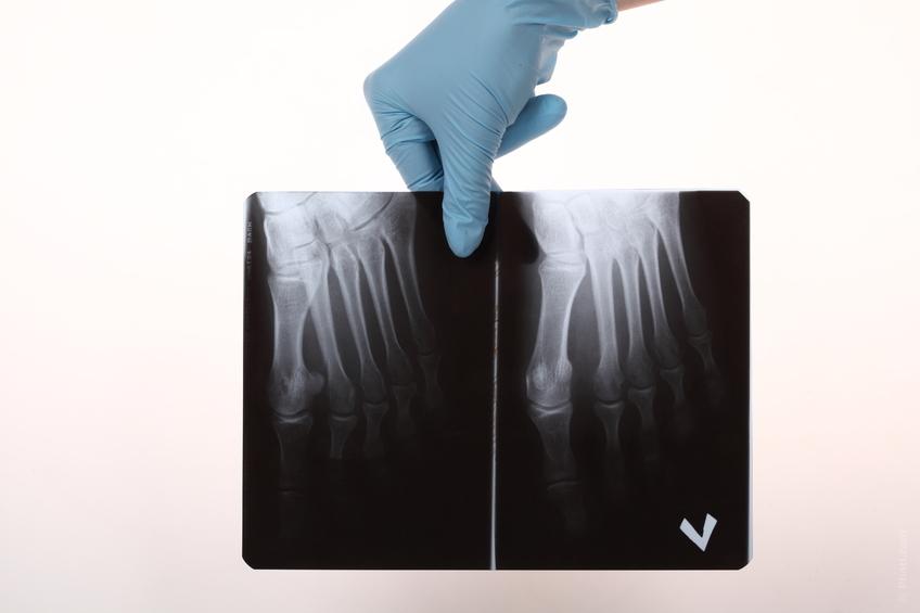 Tratamiento Dolor Granada - Mulculoesqueletico