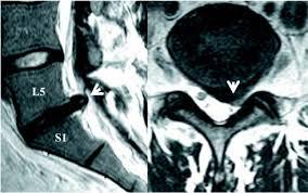 Hernia Discal L5-S1 Lumbar.