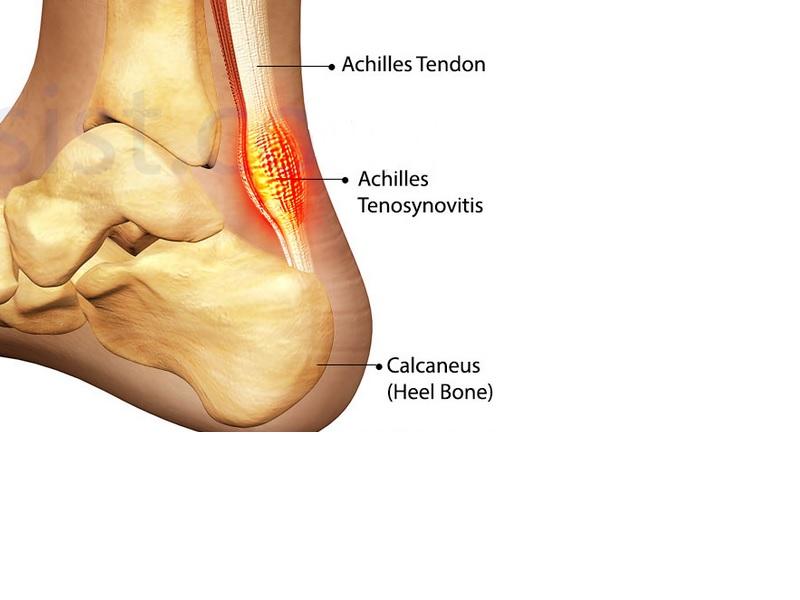 Aquiles la tendinitis tratamiento para de