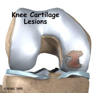 Cartílago articular con lesión.