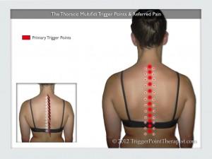 Tratamiento del dolor de la columna