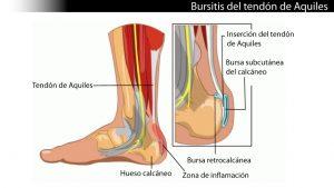 Bursitis-RetroAquilea y Retrocalcánea